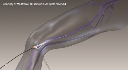 Endovenous Ablation Procedures - Austin Texas