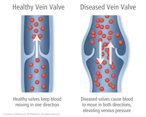 Vein Disease | Varicose Veins | South Austin Vein Center