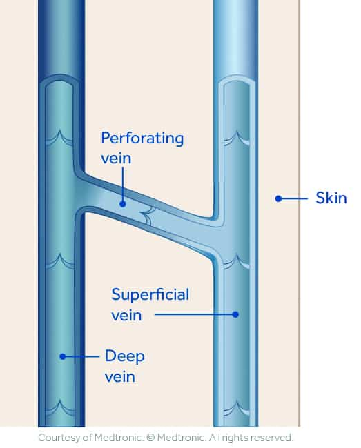 Vein Anatomy | South Austin Vein Center